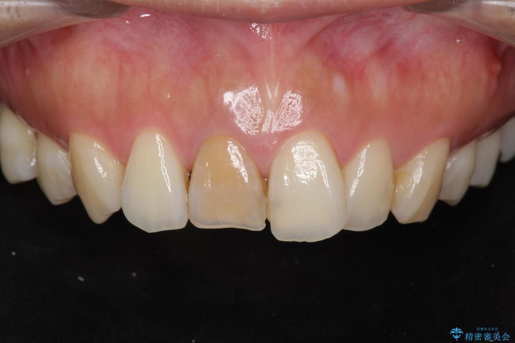 顕微鏡治療を使用した前歯の精密オールセラミック治療 ビフォー