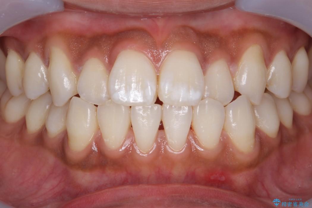 オフィスホワイトニング(エクセレントコース) 治療前画像
