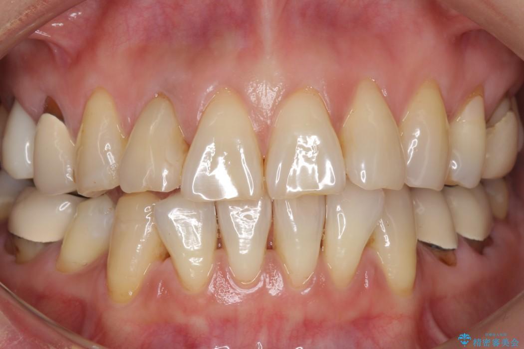 加齢により黄ばんだ歯のクリーニングとホワイトニング ビフォー