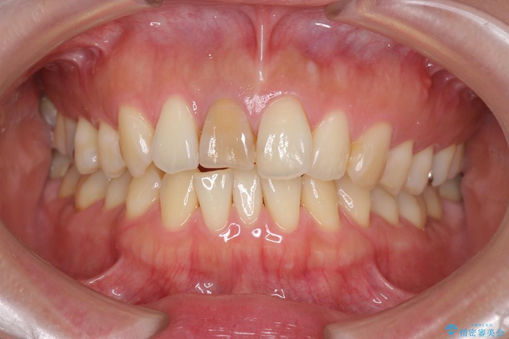 顕微鏡治療を使用した前歯の精密オールセラミック治療 治療前画像