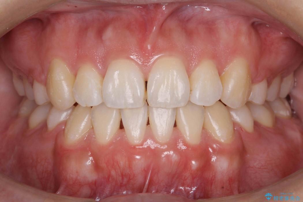 オープンバイト、八重歯の矯正 アフター