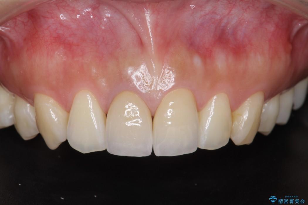 顕微鏡治療を使用した前歯の精密オールセラミック治療 アフター