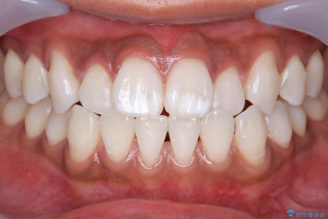オフィスホワイトニング(エクセレントコース) 治療後画像