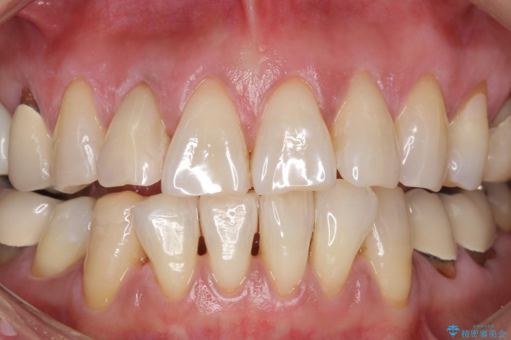 加齢により黄ばんだ歯のクリーニングとホワイトニング アフター