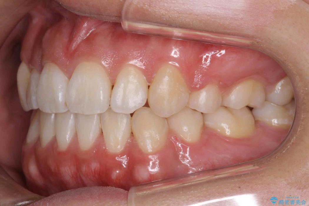 オープンバイト、八重歯の矯正 治療後画像