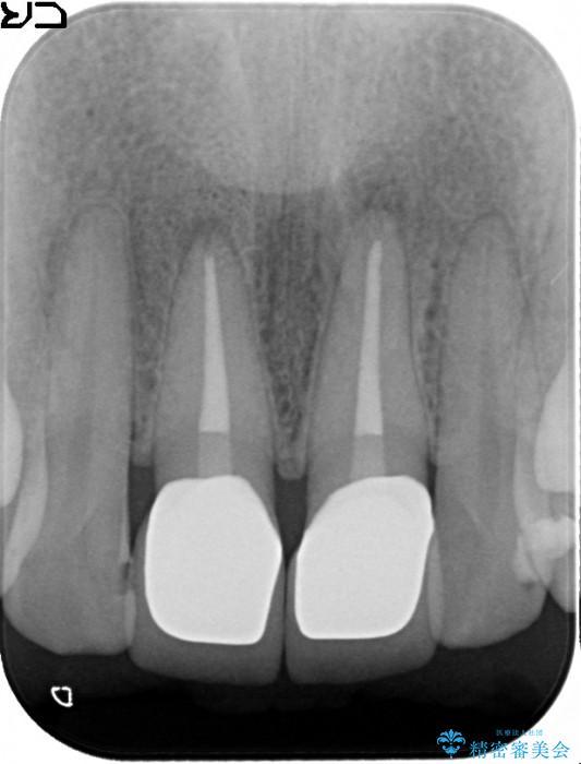 顕微鏡治療を使用した前歯の精密オールセラミック治療 治療後画像