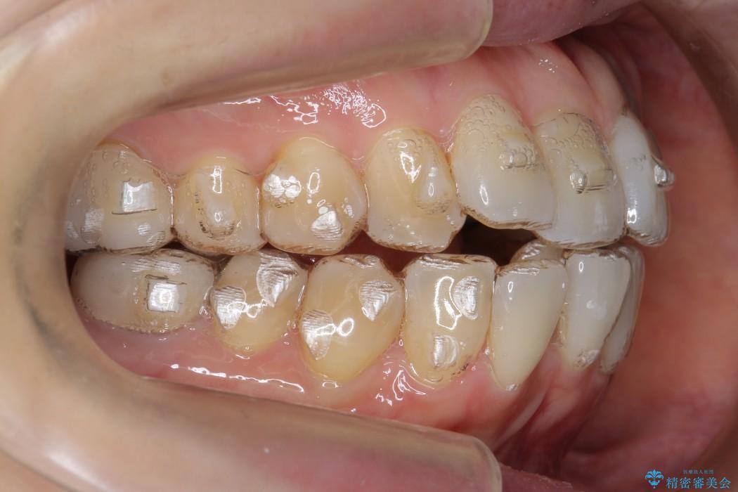 歯並び・虫歯・根っこ(根管)の総合歯科治療 治療中画像