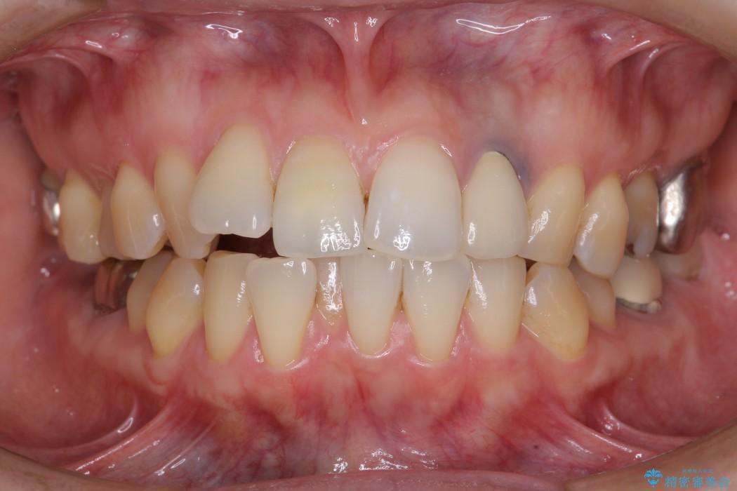 歯並び・虫歯・根っこ(根管)の総合歯科治療 ビフォー