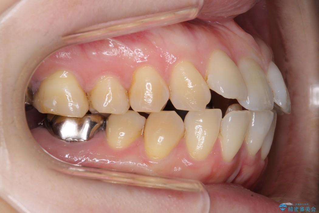 歯並び・虫歯・根っこ(根管)の総合歯科治療 治療前画像