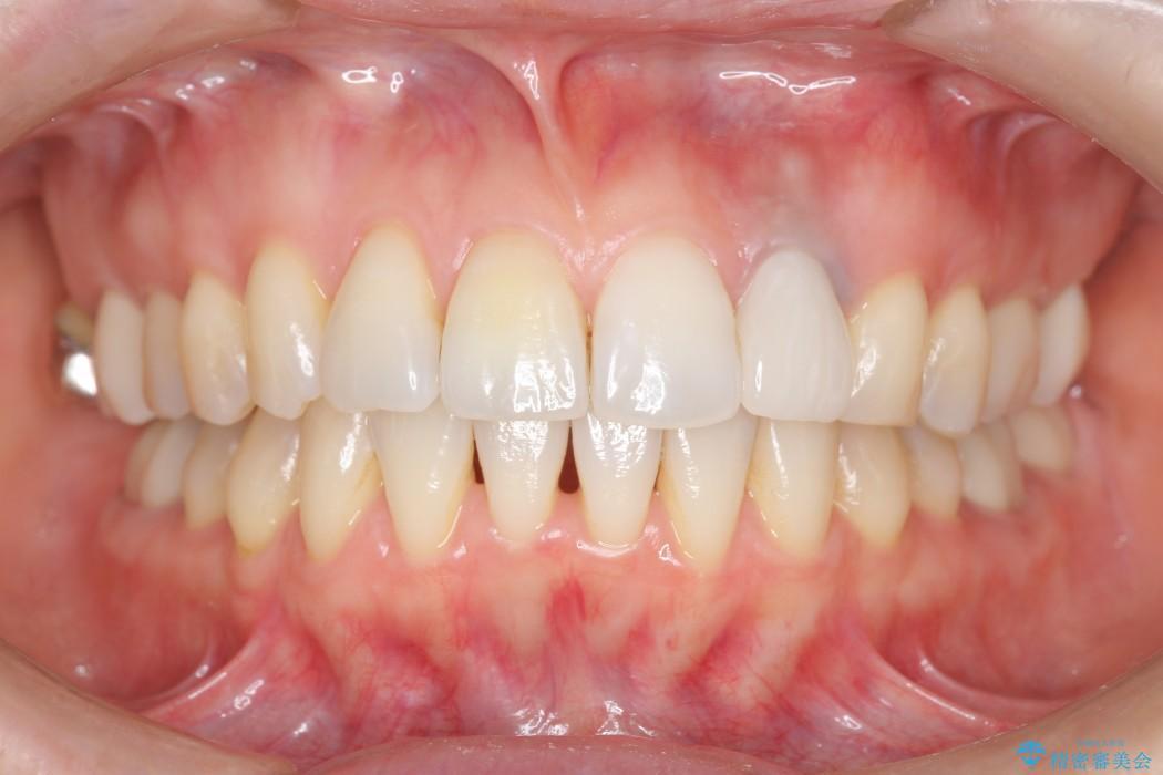 歯並び・虫歯・根っこ(根管)の総合歯科治療 アフター