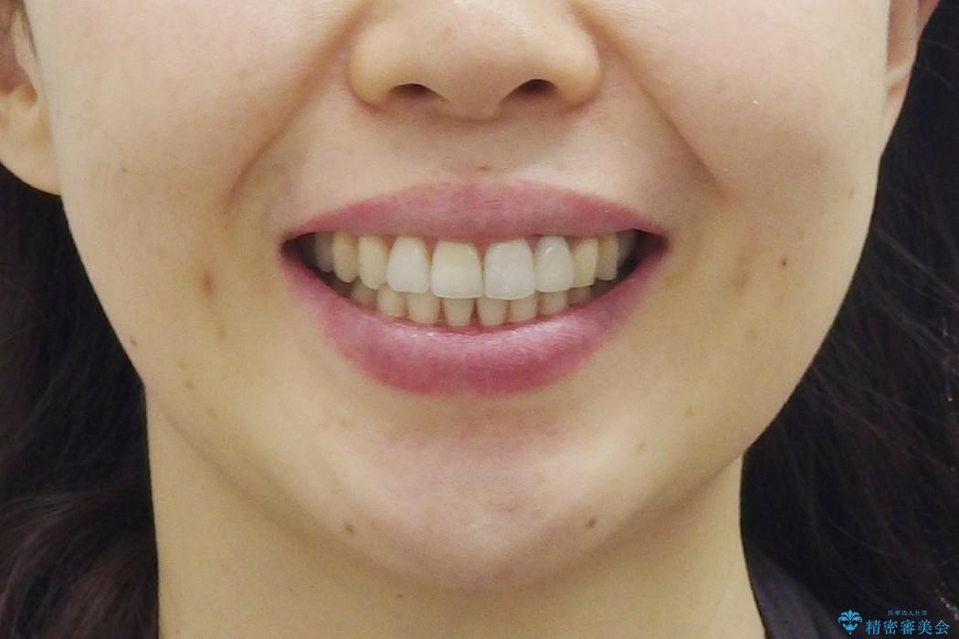 歯並び・虫歯・根っこ(根管)の総合歯科治療 治療後画像