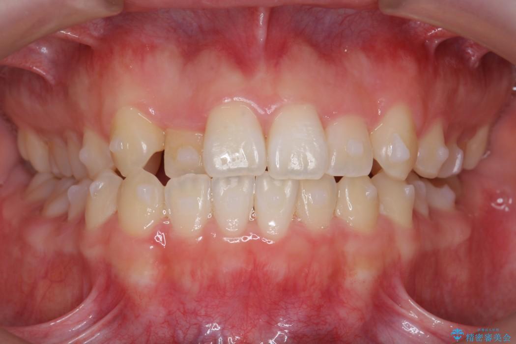 後ろに引っ込んだ前歯(2番の歯)をアライナーで治療 治療中画像