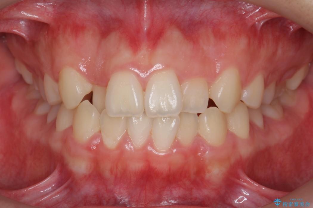 後ろに引っ込んだ前歯(2番の歯)をアライナーで治療 ビフォー