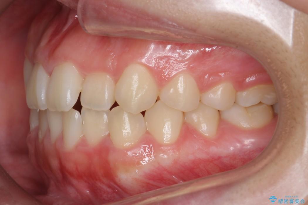 後ろに引っ込んだ前歯(2番の歯)をアライナーで治療 治療前画像