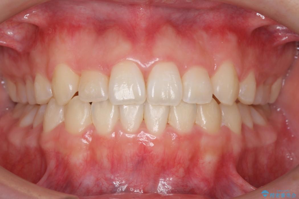 後ろに引っ込んだ前歯(2番の歯)をアライナーで治療 アフター