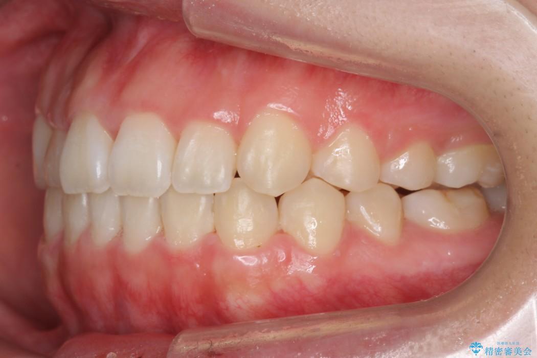 後ろに引っ込んだ前歯(2番の歯)をアライナーで治療 治療後画像