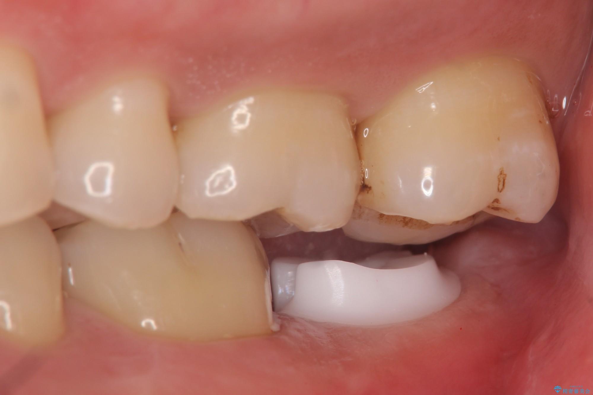 下の奥歯を虫歯で失ってしまった30代男性 ストローマンインプラント 治療中画像
