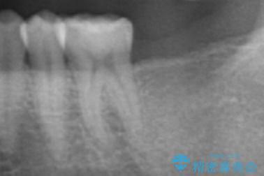 下の奥歯を虫歯で失ってしまった30代男性 ストローマンインプラント 治療前画像