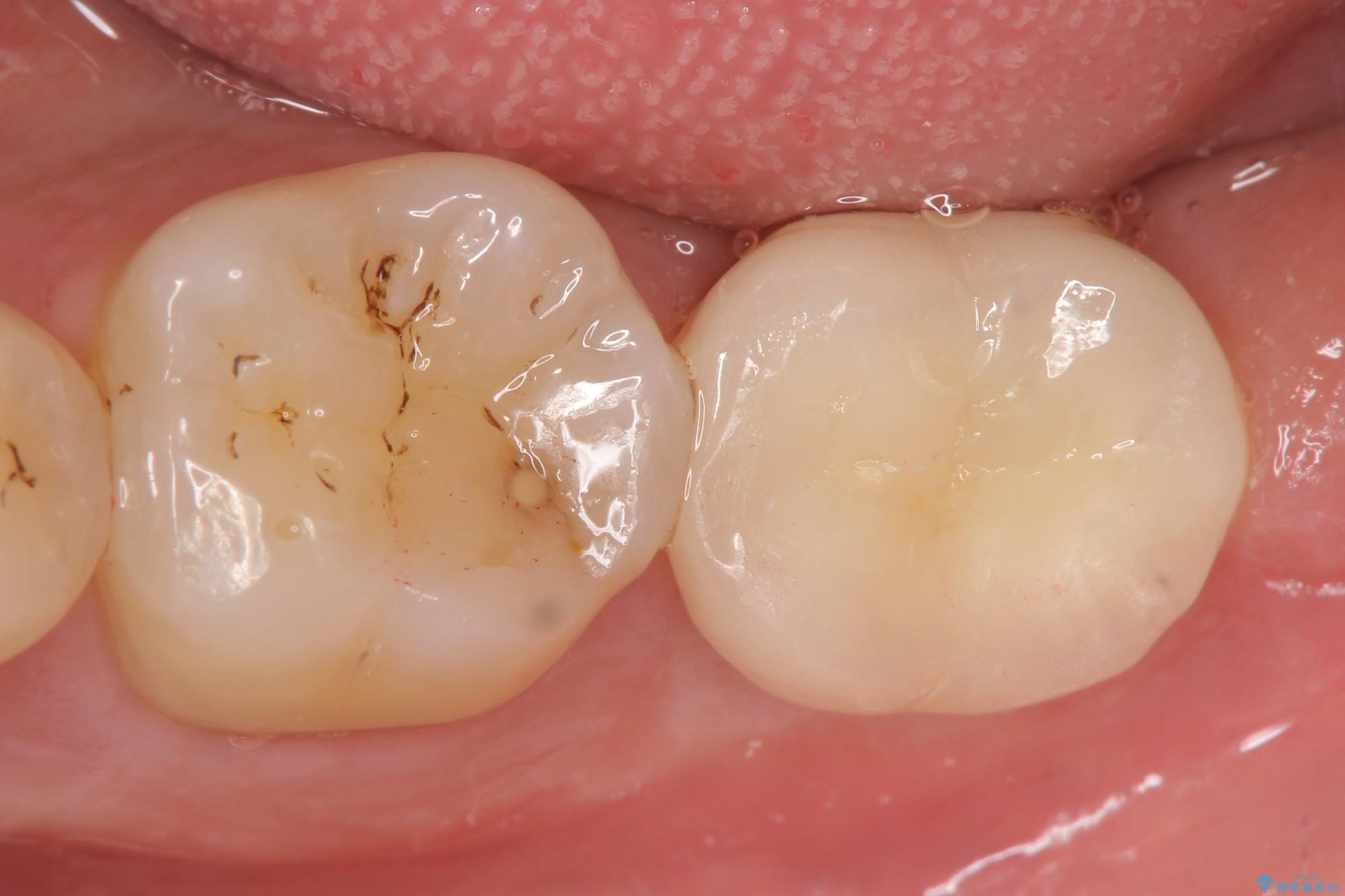 下の奥歯を虫歯で失ってしまった30代男性 ストローマンインプラント アフター