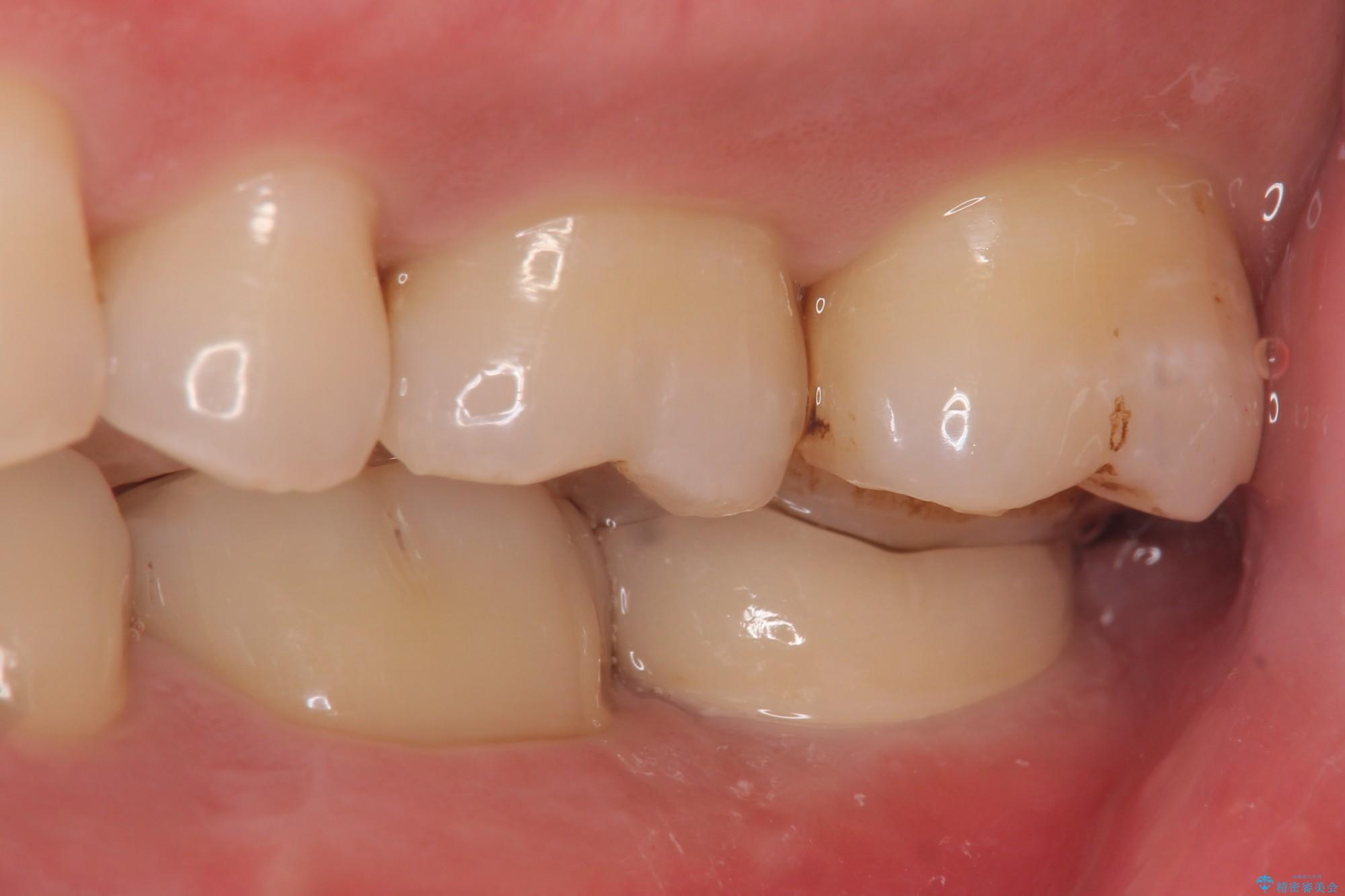 下の奥歯を虫歯で失ってしまった30代男性 ストローマンインプラント 治療後画像