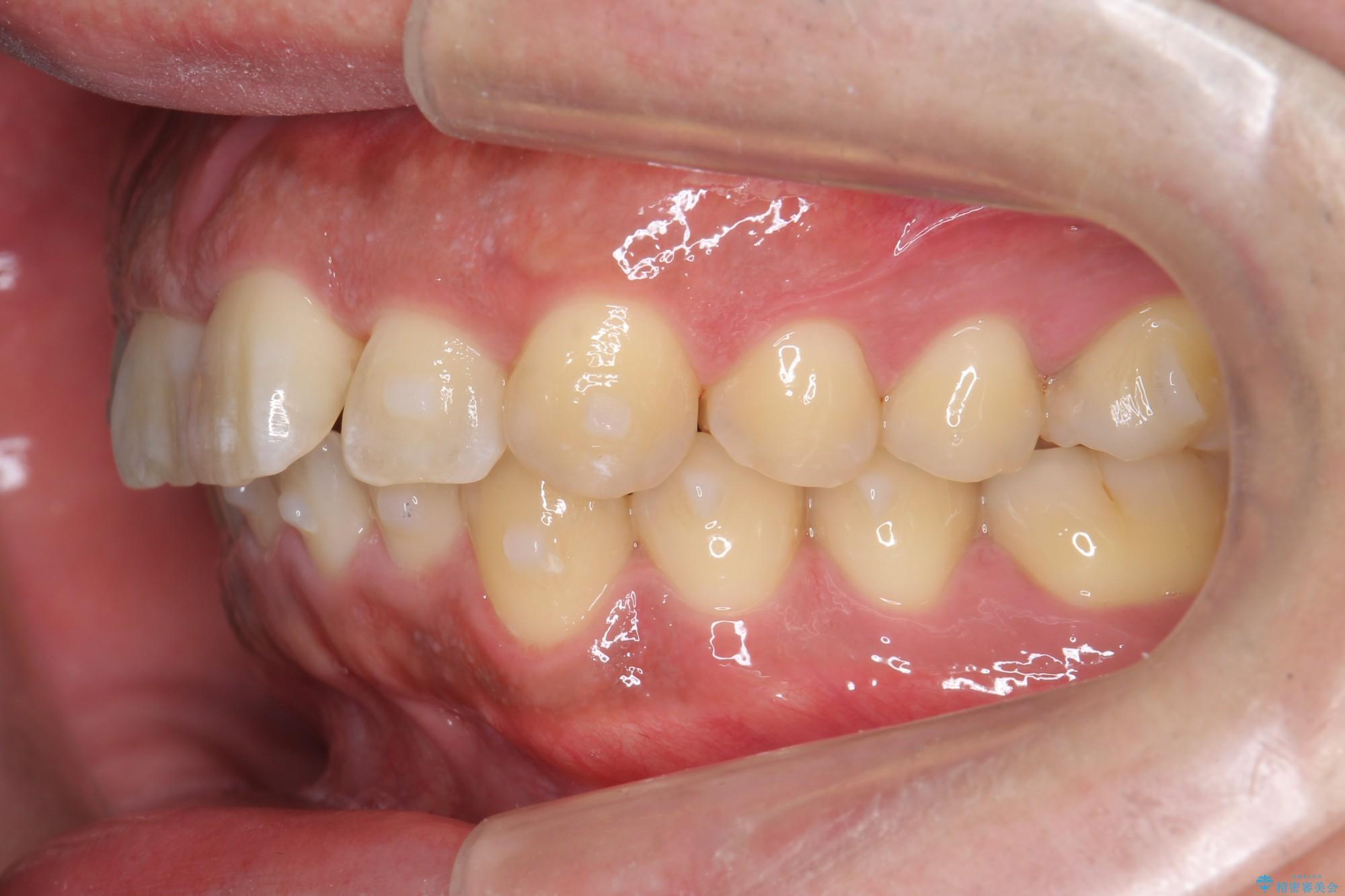 ねじれた前歯のマウスピースによる矯正 治療中画像