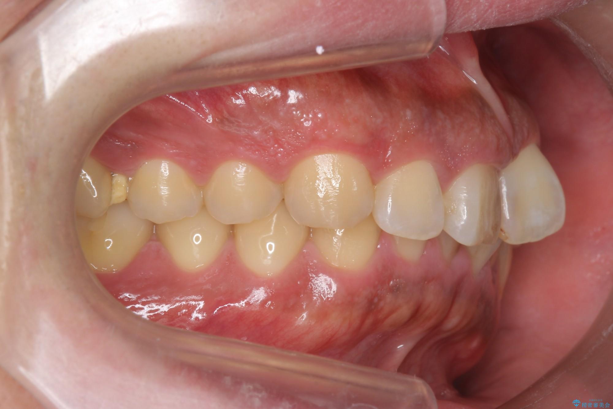 ねじれた前歯のマウスピースによる矯正 治療前画像