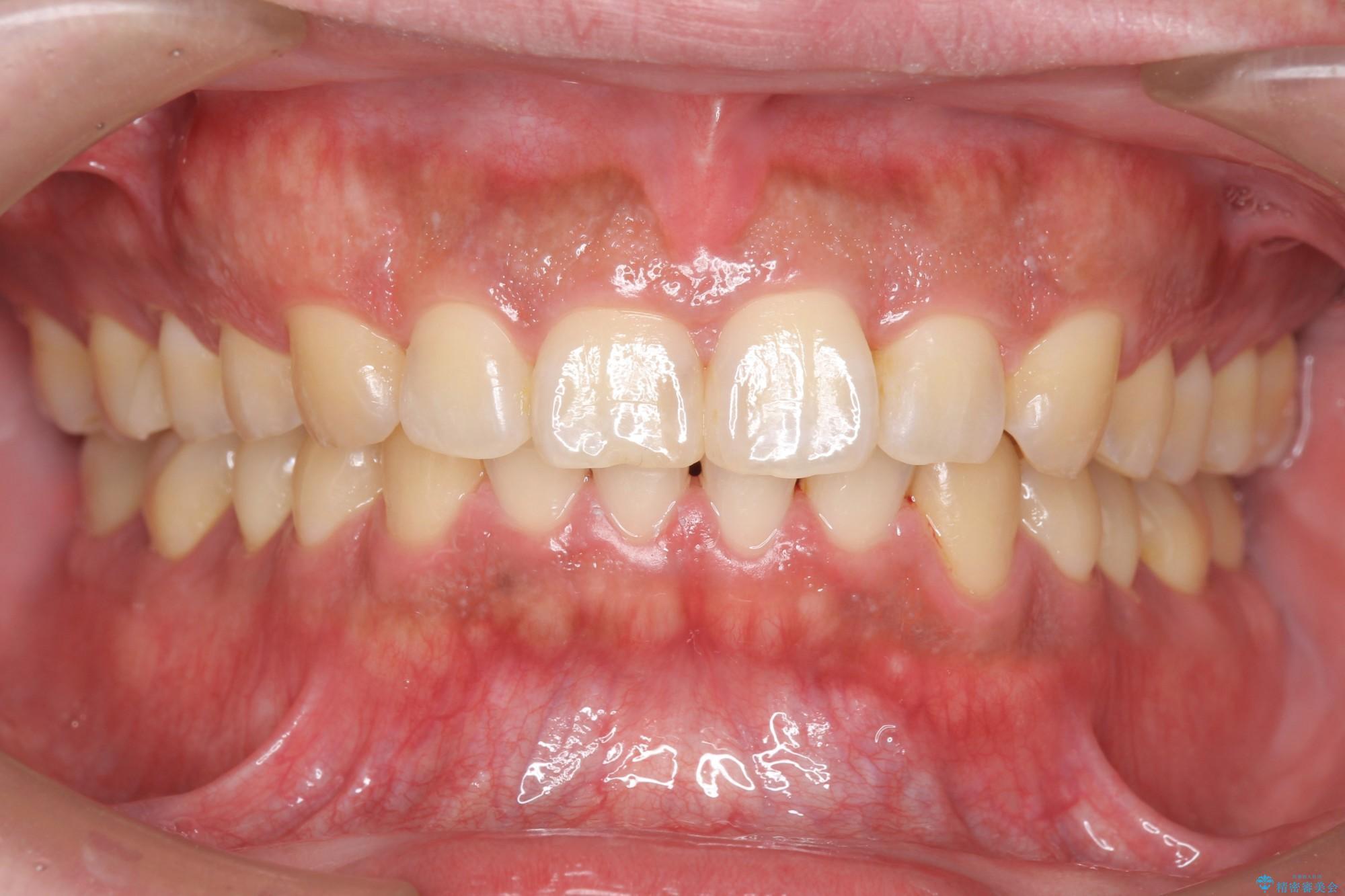 ねじれた前歯のマウスピースによる矯正 アフター