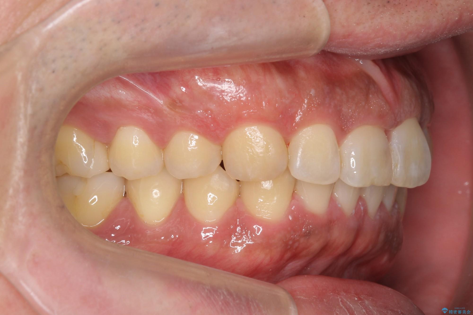 ねじれた前歯のマウスピースによる矯正 治療後画像