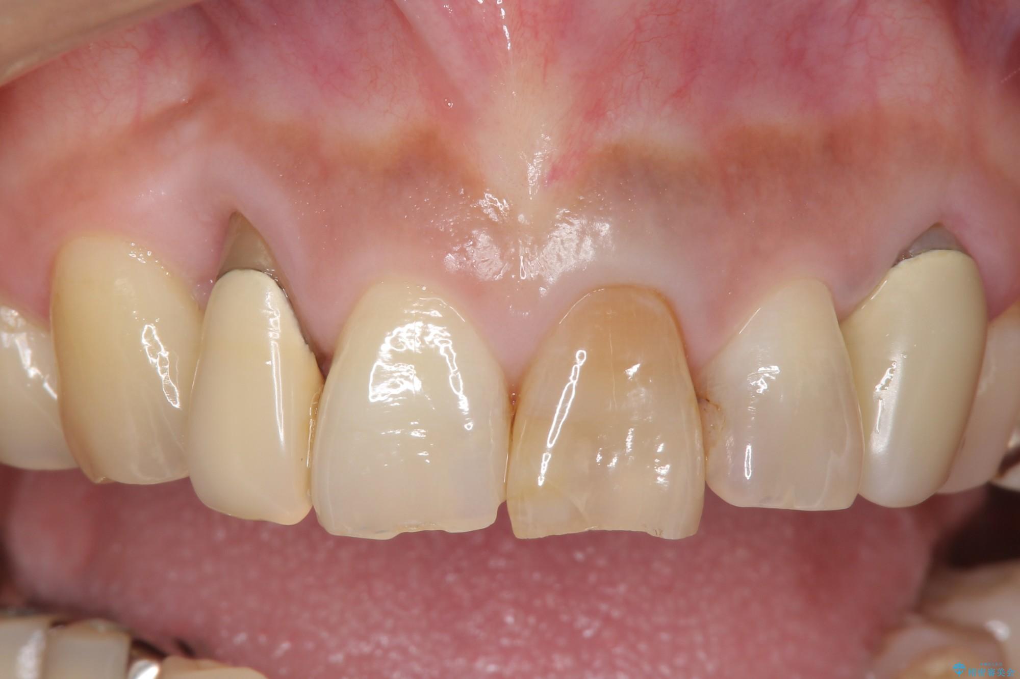 下がってしまった歯茎の改善とオールセラミックによる前歯の治療 ビフォー