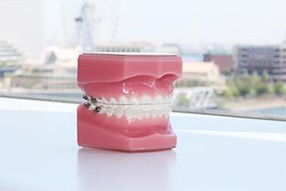 きれいな歯並び(審美性)
