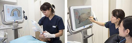 口腔内の型取り(光学3Dスキャニング「iTero Element」)