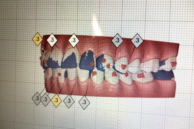 精密検査、診断(検査代:¥20,000~税別、歯周病検査は別途)