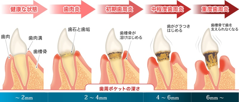 歯周病段階