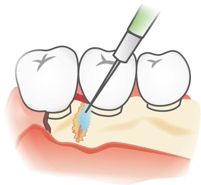 歯槽骨の再生治療