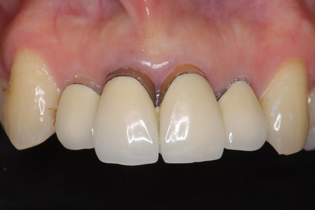 歯と歯茎の間の黒ずみ